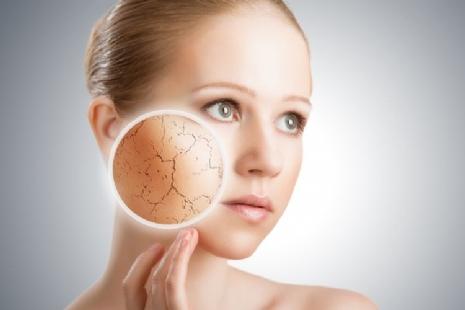 Producten voor de droge huid
